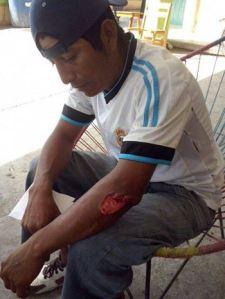 Policía Comunitario agredido. Foto (@Tierra y Territorio)